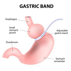 Weight Loss Surgery Type - Gastric Band